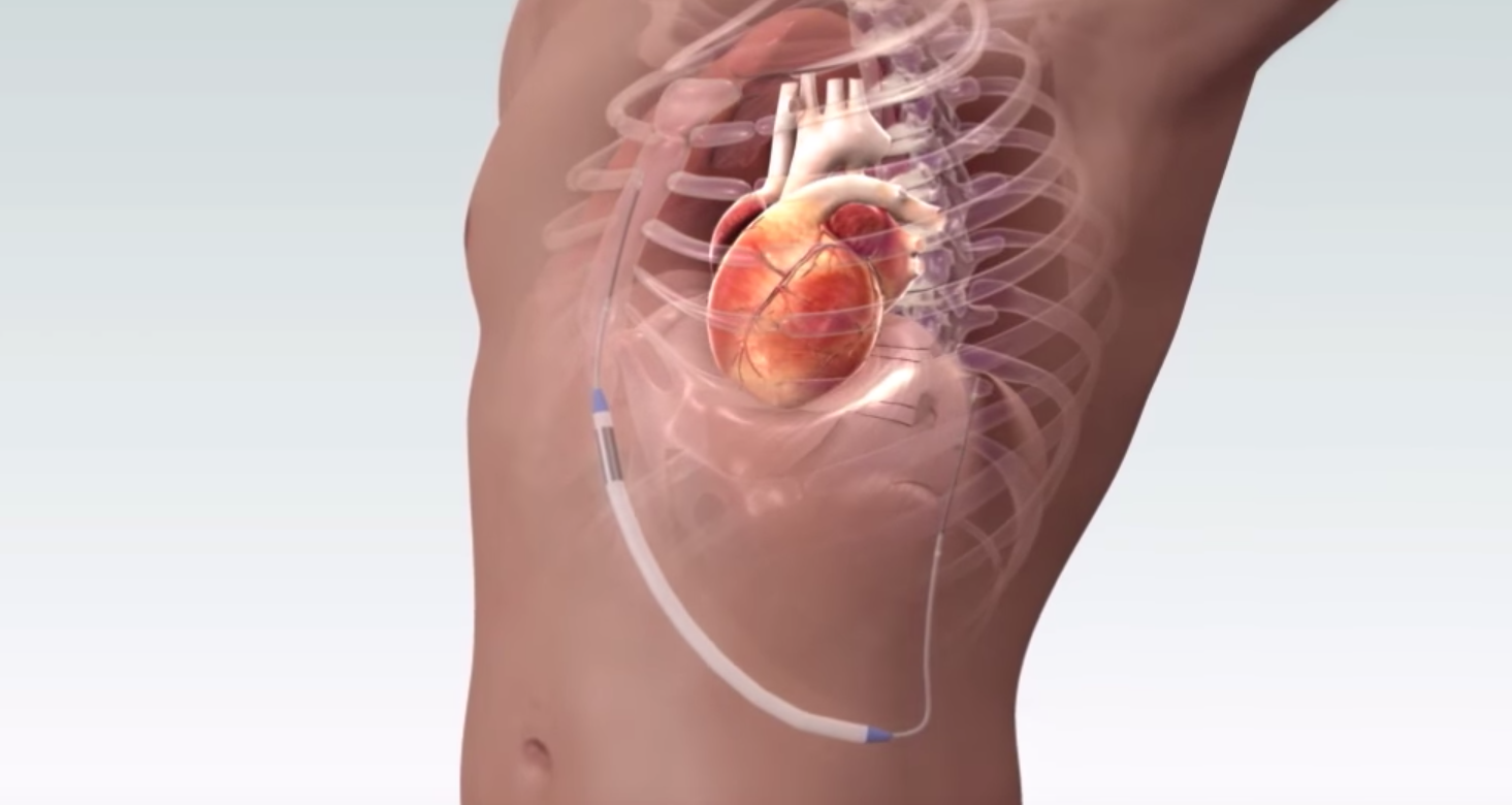 Novel String Shaped Subcutaneous Icd Proves Effective In