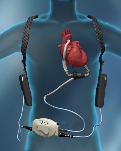 ROADMAP Study Demonstrates HeartMate II Benefits in Ambulatory Advanced  Heart Failure Patients | DAIC