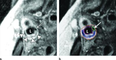 Carotid Artery MRI Systems Clinical Study Trial Cath Lab Cardiac Diagnostics