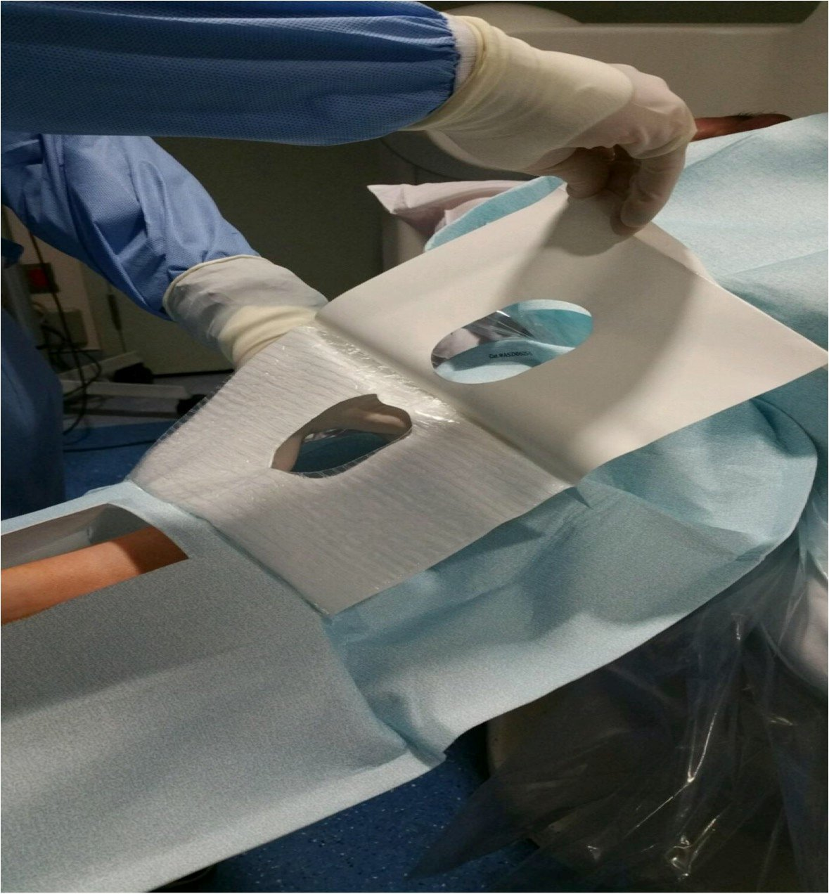 Improving Efficiencies With A Radial Access Sleeve Drape