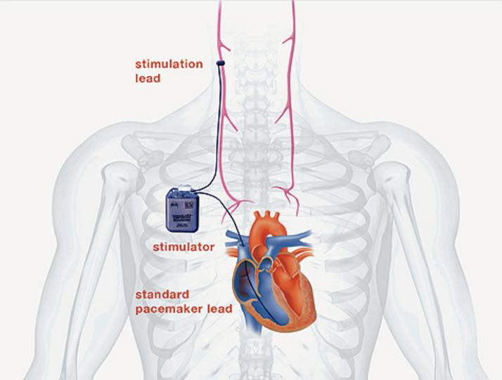 Vagus Nerve Stimulation In Heart Failure Fails To Improve Primary