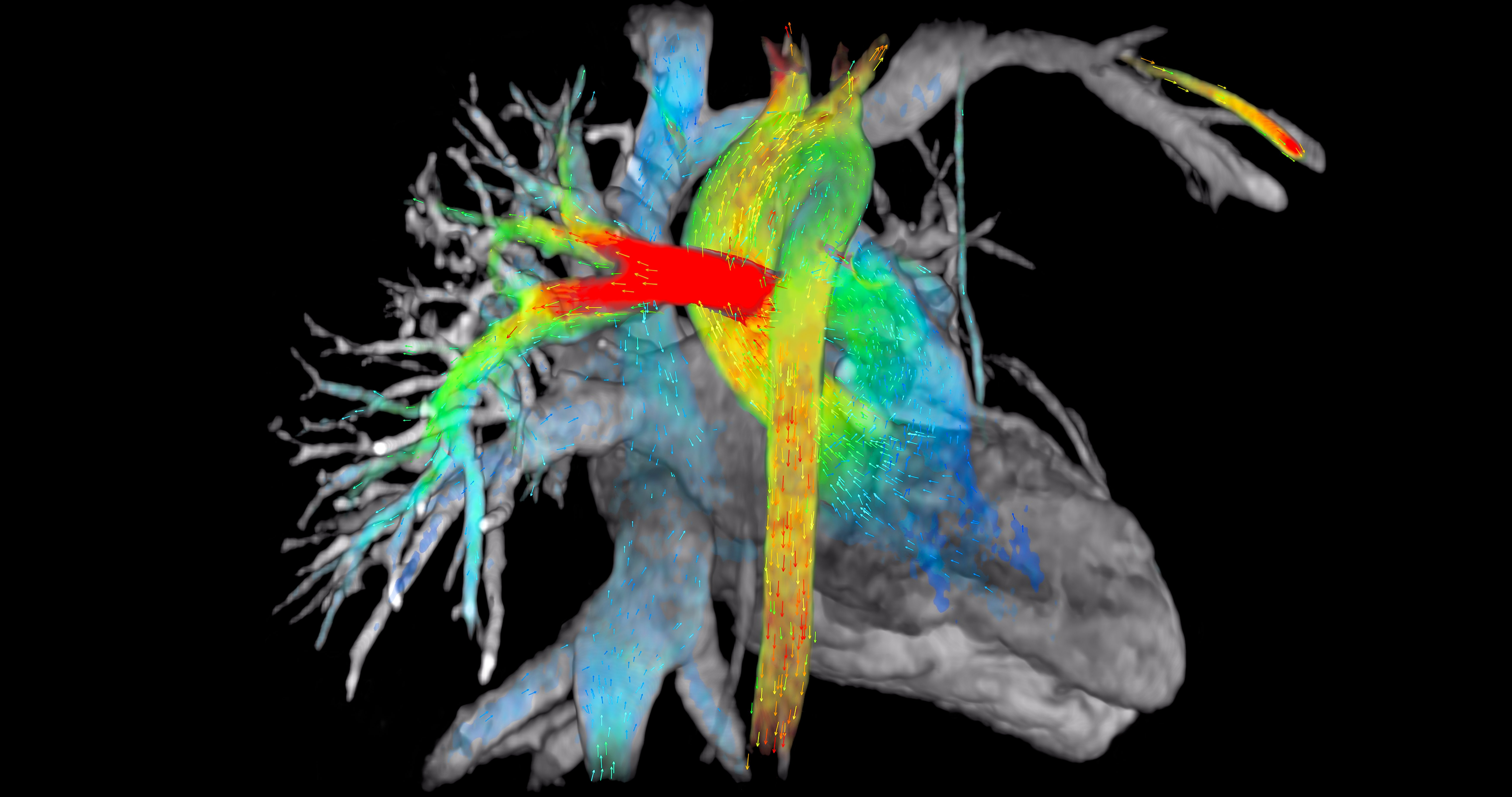 Most Innovative New Cardiac Imaging Technology At Rsna