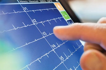 Mortara, ELI 280, TouchScreen ECG, ECG advances, new ECG technology