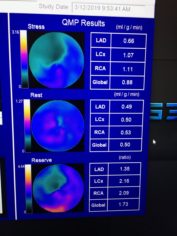 One of the newer technologies discussed in sessions at ASNC 2019 is the use of quantitative myocardial perfusion (QMP) flow reserve to enhance PET imaging. This is an example of software to perform this from the vendor Cardiovascular Imaging Technologies on the expo floor. Flow reserve can help show the severity of the ischemia detected on a PET scan and help show its cause and course of therapy. It takes the stress QMP divided by the rest scan QMP to offer a ratio for the flow reserve. #ASNC #ASNC19