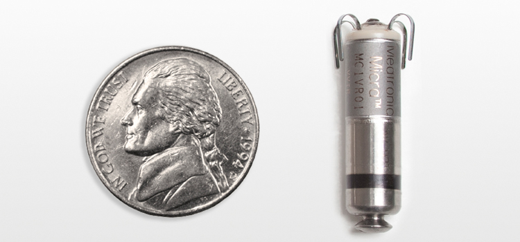 The Abbott Micra leadless, single chamber pacemaker.
