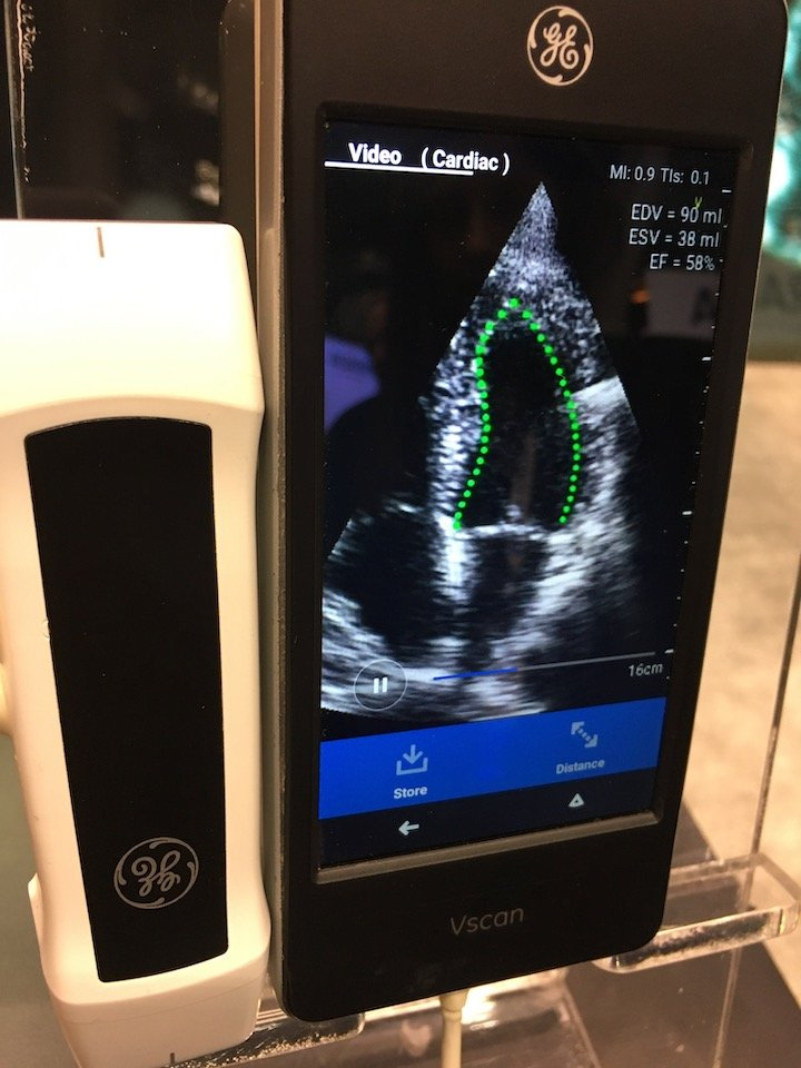 Dia AI software performs an auto ejection fraction measurement on a GE Healthcare Vscan POCUS ultrasound using artificial intelligence. Photo by Dave Fornell