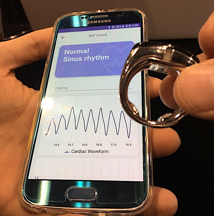 An example of a wearable cardiac tracking device offered by the vendor Sky Lab displayed at the American heart Association (AHA) 2018 meeting. It is worn like a normal ring on a finger and interfaces with a smartphone app via a wireless Bluetooth connection to track ECG readings and alert a patient if an arrhythmia is detected. Photo by Dave Fornell.