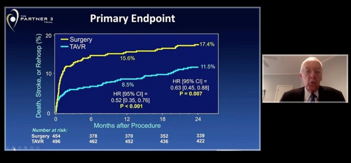 The primary endpoint slide of combined death, MI and stroke in TAVR vs. surgery in the PARTNER 3 trial presented at ACC 2020.