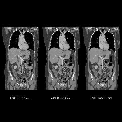 Copmparison of artificial intelligence assisted CT image reconstruction for low-dose CT scans using the Canon Aquilion Precision CT AiCE software