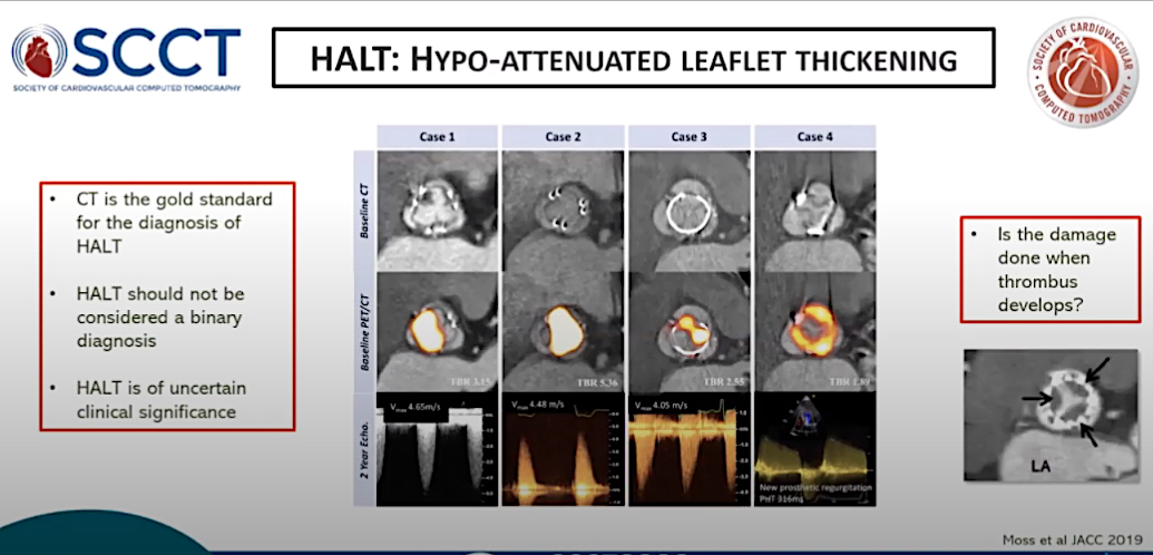 Hyper-attenuated leaflet thickening (HALT) on CT imaging due to thrombus formation on the valve leaflets has been a big concern but data from several studies shows it appears to be benign.