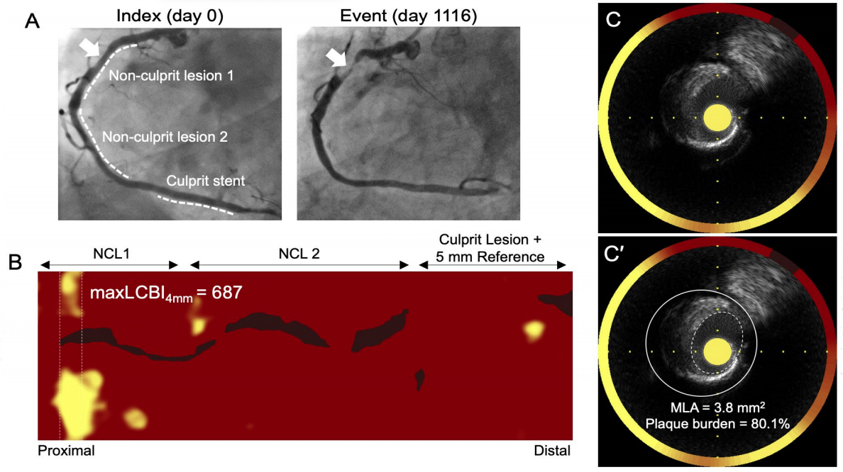 An example if NIRS-IVUS intravascular imaging technology from the PROSPECT II trial showing 3 lesions in coronary artery and the technology chemogram showing areas of high lipid content in the vessel wall in yellow. #TCTconnect #TCT2020