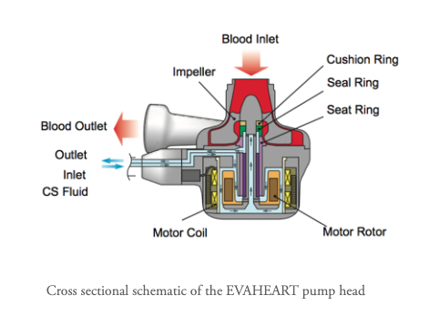 The EvaHeart2 LVAD system