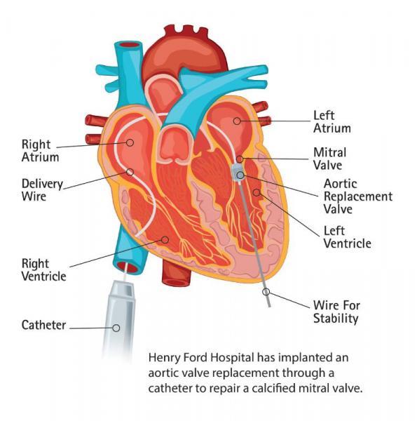 Edwards Lifesciences Sapien Transcatheter Aortic Valve Heart Repair Structural
