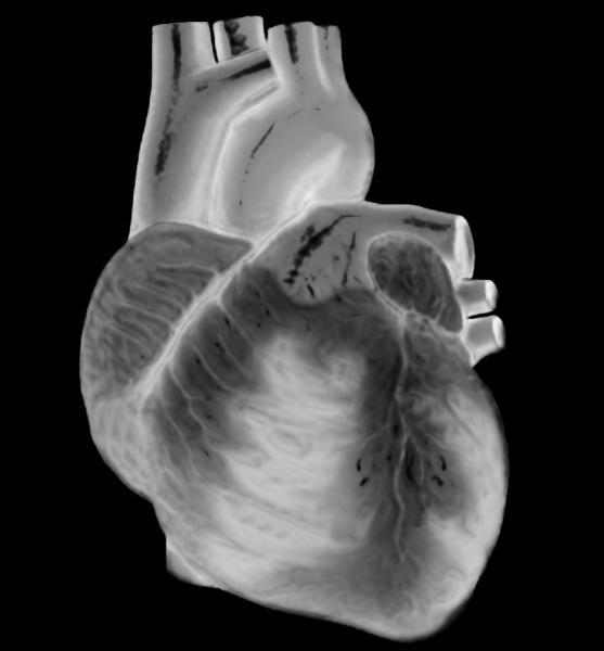 acc pharmaceuticals renal denervation heart valve repair antiplatelet therapy