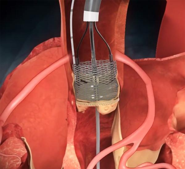 heart valve repair hybrid or cath lab reprise II boston scientific lotus tct