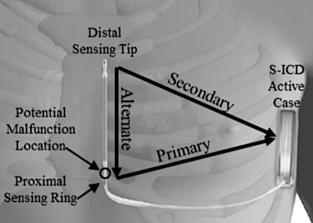 Figure1: Picture of the Emblem S-ICD Subcutaneous Electrode with an arrow showing where separation usually happens (distal to the proximal sense ring).