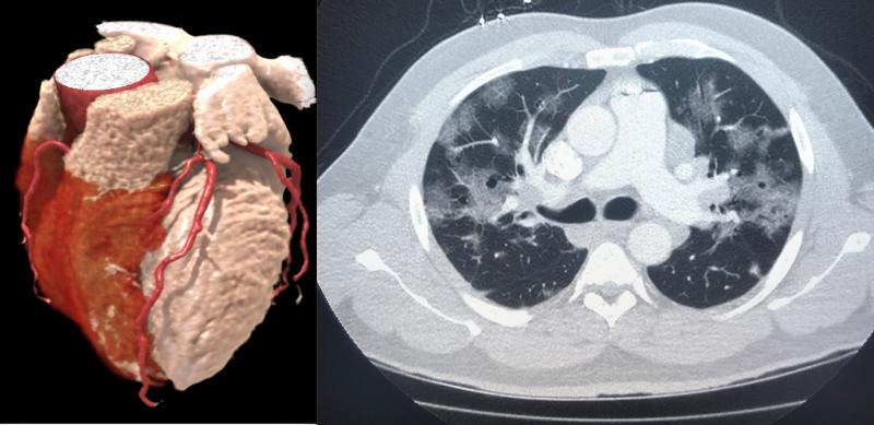 Left, a 3-D rendering of a heart from a cardiac CT exam. Right, a lung-CT exam showing the heart and ground glass lesions in the lungs of a COVID-19 patient. CT has become a front-line imaging modality in the COVID era because it offers both cardiac and lung information to help determine a patients disposition with chest pain, COVID-19 and COVID-caused myocarditis and pulmonary embolism.