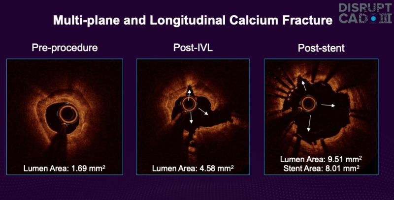 The DISRUPT CAD III study showed intravascular lithoplasty from Shockwave Medical was effective in breaking up calcified coronary lesions. #TCT2-0