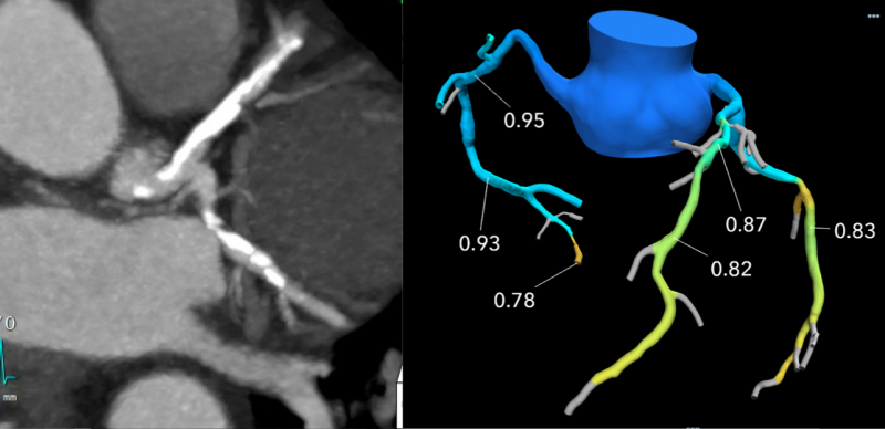 CT-FFR example showing heavily calcified coronary arteries on CT that did not have hemodynamically significant impact on blood flow.