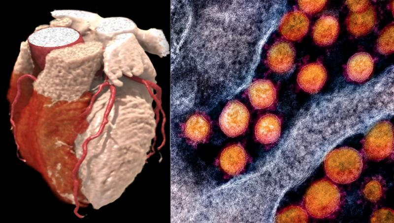 COVID-19 has a big impact on the heart, and patients with pre-existing cardiovascular disease have at least a 10 percent higher risk of death and severe complications due to the virus. The virus also can cause myocarditis, blood clotting, and impact the cardiovascular system due to severe, hyperactive inflammatory responses.  Left, a cardiac CT scan 3-D rendering. right, the COVID-19 virus from a National Institutes of Health (NIH) photo.