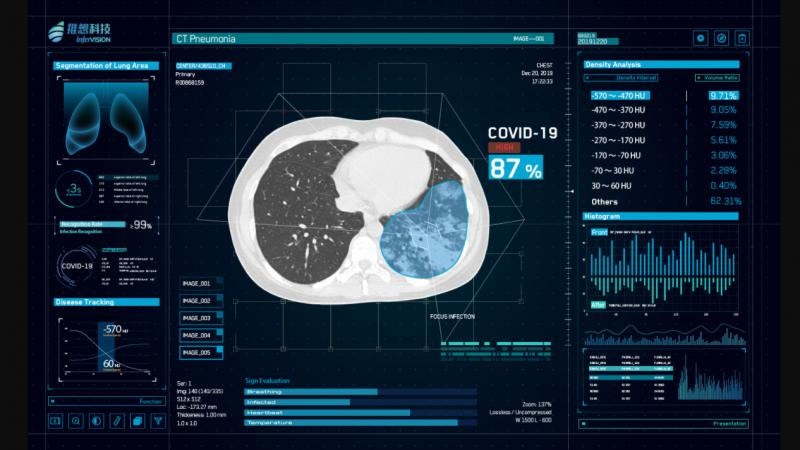 AI vendor Infravision's InferRead CT Pneumonia software uses artificial intelligence-assisted diagnosis tp improve the overall efficiency of the radiology department. It is being delayed in China as a high sensitivity detection aid for novel coronavirus pneumonia (COVID-19). #COVID-19 #COVID19 #Coronavirus #2019-nCoV