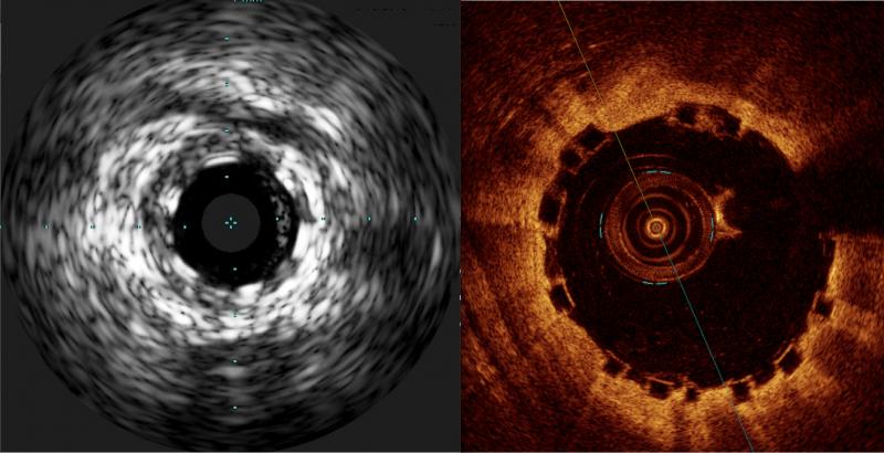 bioresorbable stent, bioabsorbable stent, Absorb BVS, visualizing bioresorbable stents