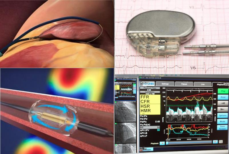 Some of the top technology news from ACC 2021. Top left, the LAAOS III trial showed benefit when surgeons seal off the LAA during other open heart procedures. Bottom left, the ReCor Paradise renal denervation system helped lower blood pressure in patients who did not respond to medication. Top right, for patients with both heart failure and AFib it makes no differences is therapy is focused on controlling the heart rhythm or heart rate. Bottom right, the FLOWER-MI trial found no benefit to FFR-guided PCI.
