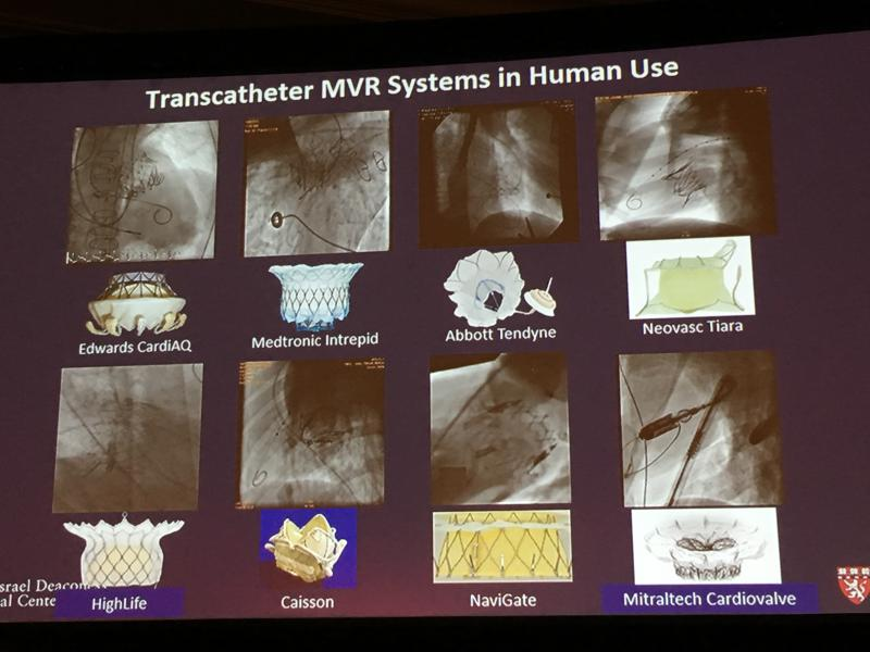A sample of the transcatheter mitral valve replacement (TMVR) devices in development or clinical trials.