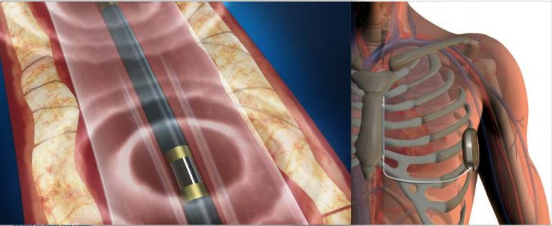 The two biggest cardiac device technology stories in February included the Boston Scientific recall of its S-ICD system, and the FDA clearance of the Shockwave intravascular lithotripsy system to break up calcified lesions in the coronary arteries.