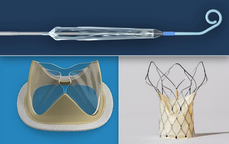 Three of the most popular cardiovascular technologies to make news in June 2020. Top is the Impella Expandable Cardiac Pump (ECP) that is about to enter U.S. feasibility trials.Bottom left, the Foldax heart valve uses a flexible man-made material for valve leaflets rather than animal pericardium tissue. The hope is this new type of surgical and transcatheter aortic valve replacements (TAVR) device will enhance longevity of the valve leaflets. Bottom right, the SMT Hydra TAVR valve is the first Indian-made s