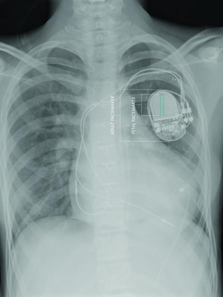 fetal pacemaker, CHLA, USC, first, fully implantable, FDA