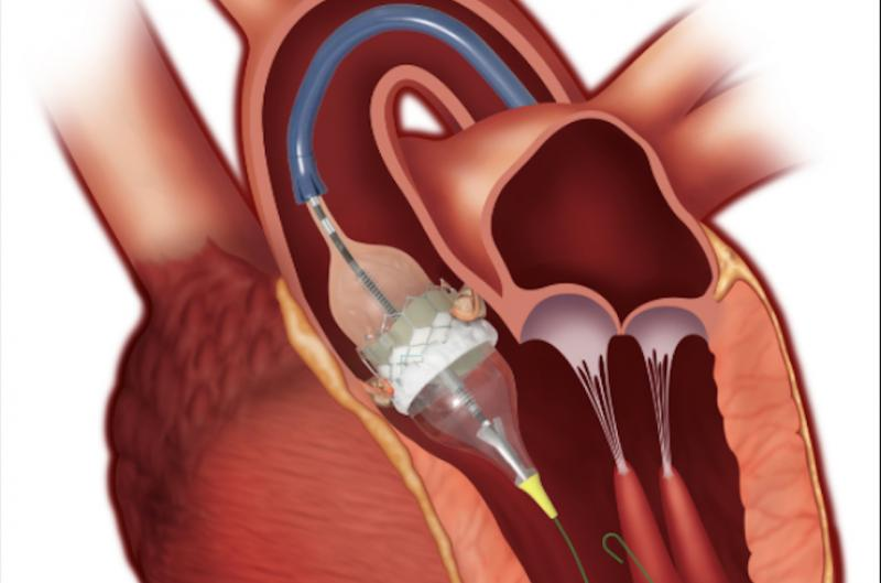 PARTNER 3 trial shows positive results for Sapien 3 in low-risk surgical patients. #ACC20 #ACC2020 #Sapien3 #TAVR