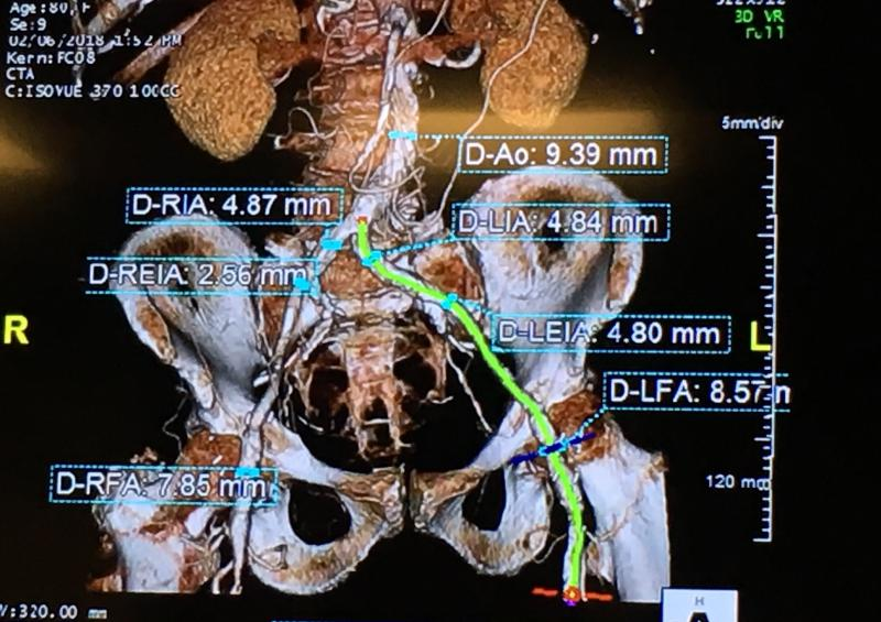 A CT scan assessment of the femoral access route challenges for a recent Central DuPage Hospital TAVR candidate. This image and the measurements were discussed by the heart team during its weekly meeting to determine if the TAVR delivery catheters could navigate the disease femoral artery and what options might best serve this patient.