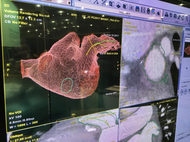 All major vendors offering advanced visualization software now offer structural heart planning. This is an example of GE Healthcare's Valve Assist software being used to determine the best location of a transseptal puncture to deliver a left atrial appendage (LAA) occluder.