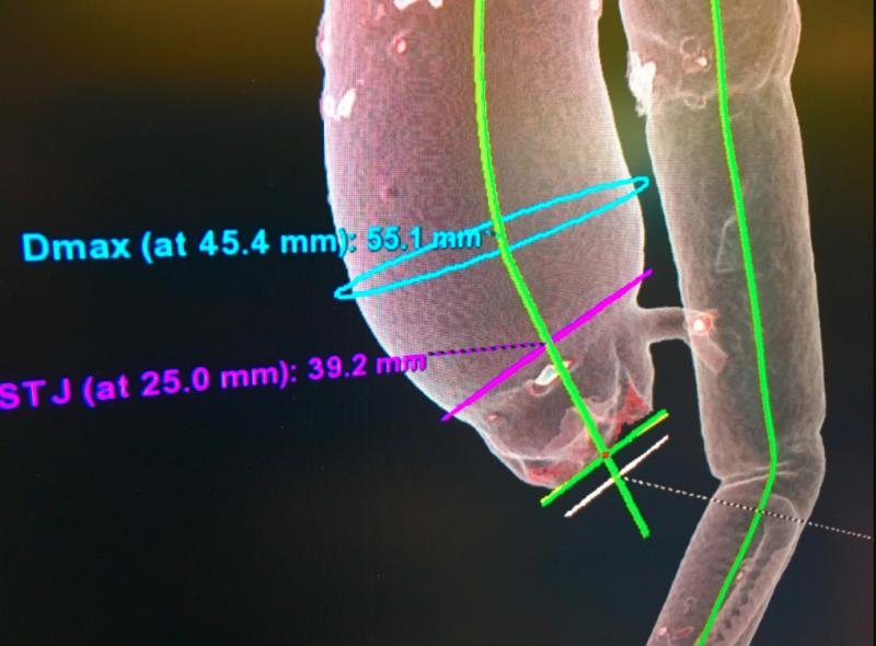 Example of an aortic valve CT imaging workup for TAVR valve sizing and assessing access routes. This patient has an aneurysm in the aortic arch. Image from GE Healthcare.