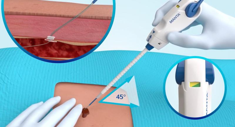 The Teleflex Manta large-bore vascular closure device can seal holes between 12 and 25 French.