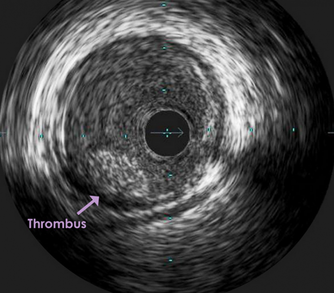clot, coronary thrombus, antiplatelet therapt, DAPT