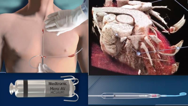 Demonstrations videos of new technologoies are among the most popular video content on the DAIC website each year. Included this year are videos showing how it install a subcutaneous ICD, CT photo-realistic rendering, How to implants the Micra leadless pacemaker and many others.