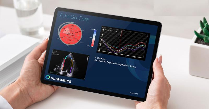 The WASE-COVID Study used the artificial intelligence automated echocardiogram reading software EchoGo-Core from Ultromics to evaluate ejection fraction and left ventricle longitudinal strain in COVID-19 patients to identify risk markers for mortality. The study also compared human vs. AI variability in assessing the exams. #ACC21 #ACC2021