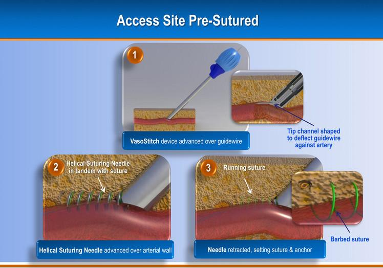 TAVR, EVAR Vascular Closure Device May Eliminate Need for Surgical Cut-Down