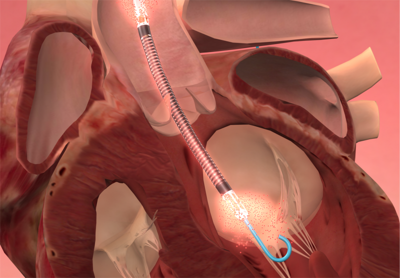 the Impella pVAD improves survival, mortality in AMI heart attack with cardiogenic shock