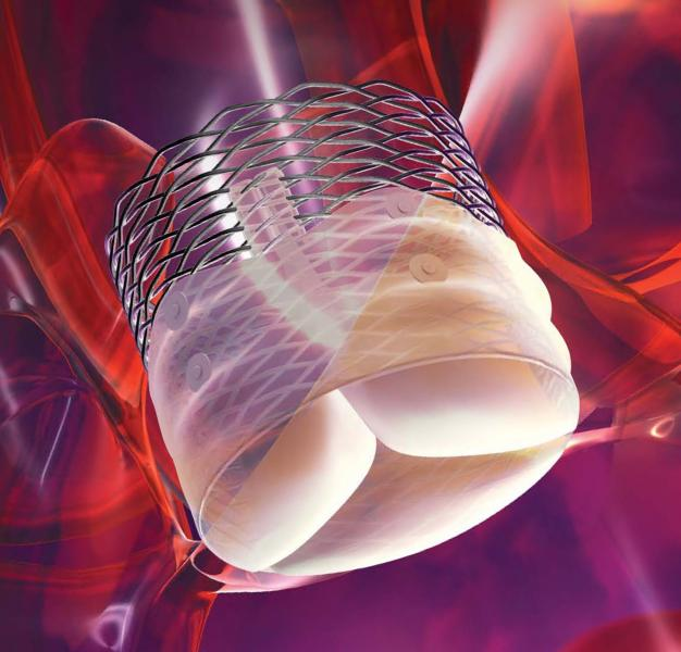 The Boston Scientific Lotus TAVR Valve