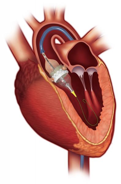Edwards Sapien 3 cleared by FDA to use for valve in valve mitral procedures. #DAIC