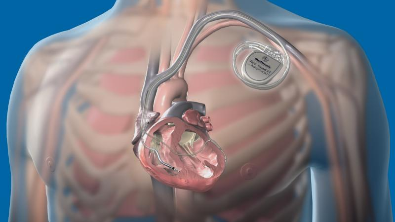 Medtronic's Attain Performa Quadripolar Lead and VivaQuad XT CRT-D system. Quadripolar leads enable more programming options to enable better patient care with this implantable cardioverter defibillator (ICD)..