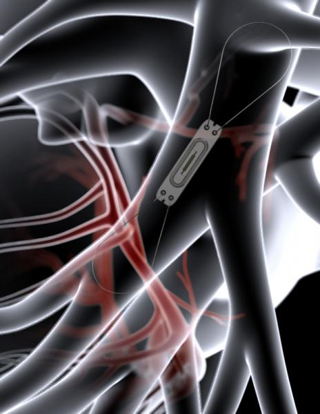 CardioMEMS, heart failure, PA pressure monitoring