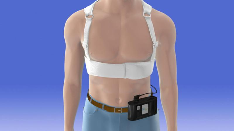 The Zoll LifeVest wearable defibrillator was the subject of the VEST Trial