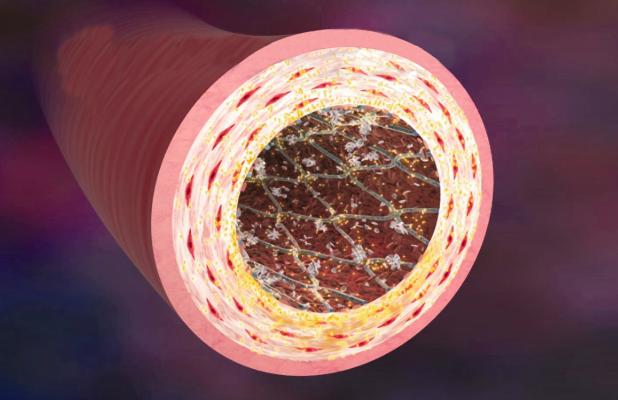 Medtronic Endeavor Stents Drug-eluting Antiplatelet Therapy Clinical Study