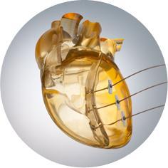 BioVentrix Revivent-TC Heart Failure Treatment Cath Lab Structural Heart