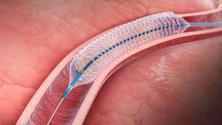 Elixir Medical DESolve Bioresorbable Coronary Scaffold System Stents