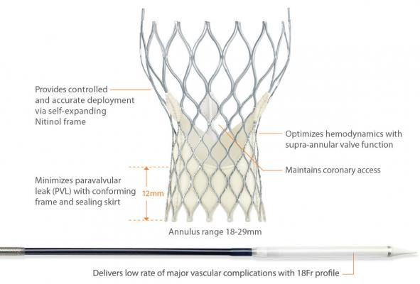 Medtronic Corevalve U.S. Pivotal Trial Results Reveal Positive